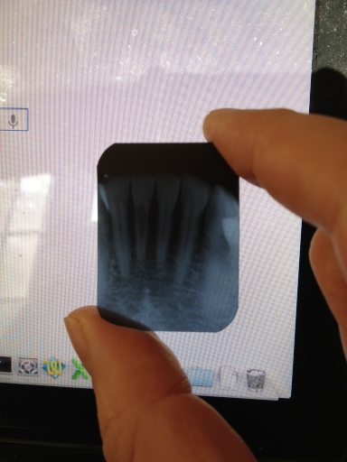 The dark shadow on the second tooth from the left is a rare condition called internal resorption