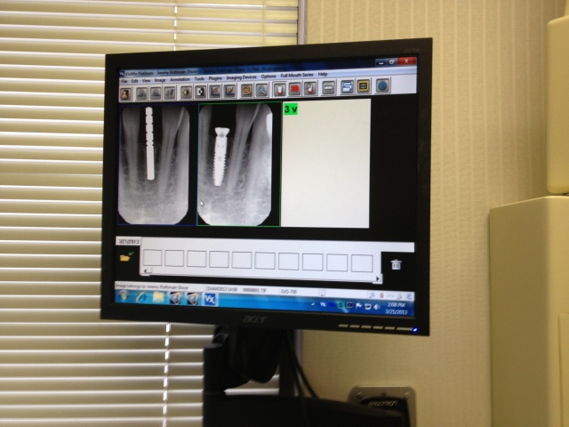 The bone had successfully regrown and was holding the implant