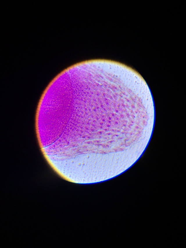 By placing the iPhone up to the microscope lens, you could clearly see the dividing cells in a corn root