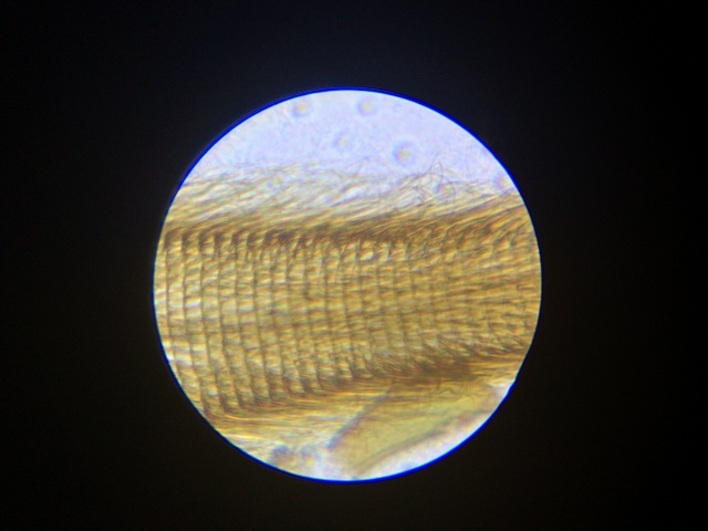 At high magnification, you can see the individual hairs